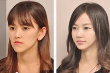 Korean Plastic Surgery Before And After Photos