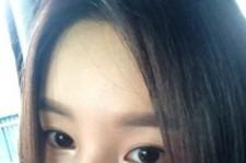 Actress Nam Gyuri's Face Bruised And Beaten